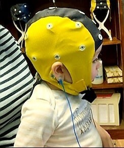 Infant with eeg cap undergoing testing